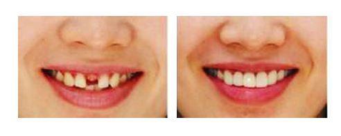 牙齿缺失选择种植牙